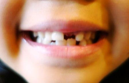 Upper-front-tooth.jpg